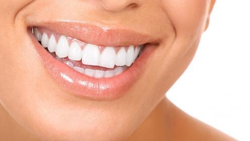 Blanqueamiento dental en una sola sesión, realizado en clínica dental