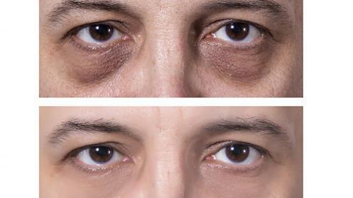 Rejuvenece de manera eficaz el contorno de tus ojos con Clínicas Láser Fusión