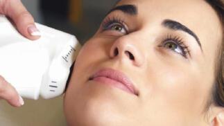 HIFU, el primer lifting facial y corporal sin cirugía