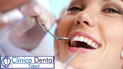 Revisión bucal completa más limpieza bucal ¡Sonríe!