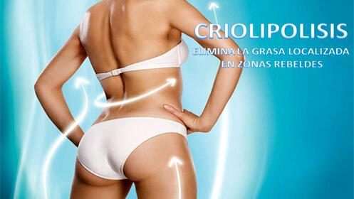 Criolipolisis 5D + plataforma vibratoria, recupera tu mejor figura eficazmente. 39,95€ sesión