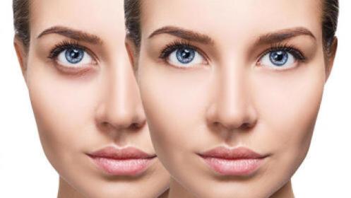 Tratamiento Iluminador Vitamina C. + tratamiento Mask Unicskin Led
