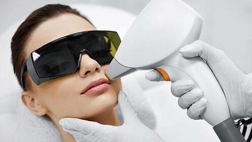 5 Sesiones de depilación láser SHR en labio superior