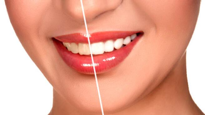 Revisión bucal completa más limpieza bucal con fluorización ¡Consigue tu mejor sonrisa!